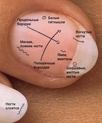 О чём расскажут ваши ногти болезни